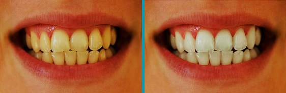 Before & after comparison for teeth whitening