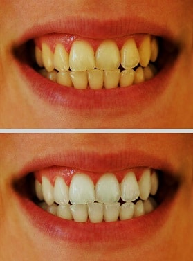 Comparison between before and after professional whitening