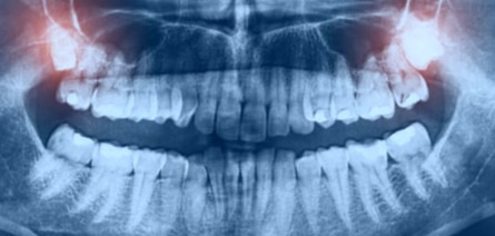 Avoid the hassle of wisdom teeth removal with sleep sedation options offered at Oxnard dentist Carson & Carson, DDS.