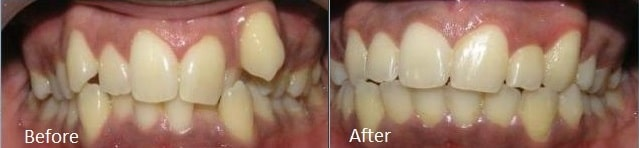 Smile transformation before and after braces