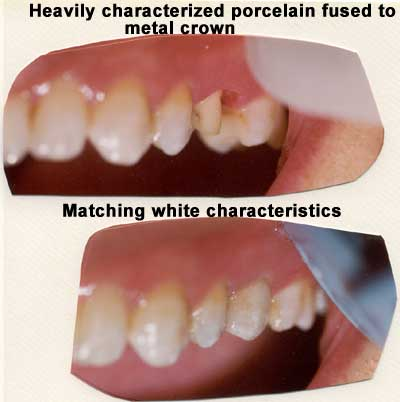 Repair of heavily characterized porcelain fused to metal crown.