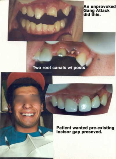 Two root canals and posts to repair damage of front teeth from an unprovoked gang attack
