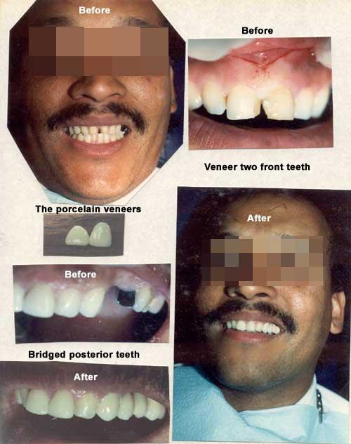 Porcelain veneers installed on front teeth