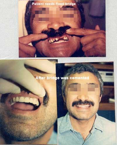 Fixed bridge of front teeth