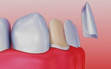 Root Canal Crown Fell Off