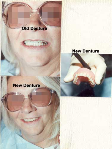 Before and After full denture replacement