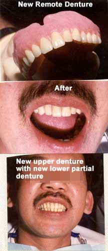 Before and After upper denture replacement