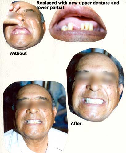 Replaced missing teeth with dentures