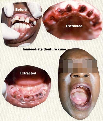 Before and After full denture set
