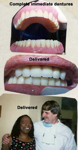 Complete immediate dentures in use