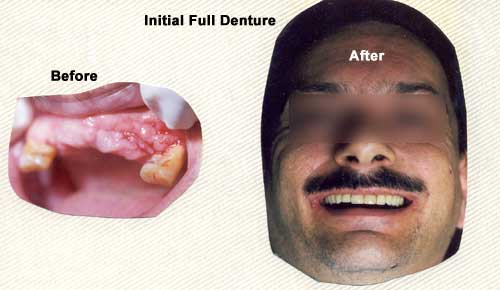 Before & after of initial full denture set