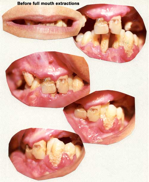 Teeth before full mouth extractions