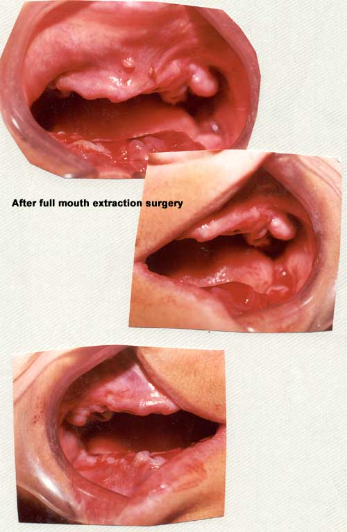Gums after full mouth extraction surgery