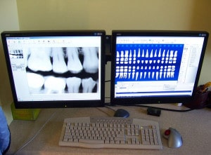 Our Digital X-ray setup at Carson & Carson, DDS