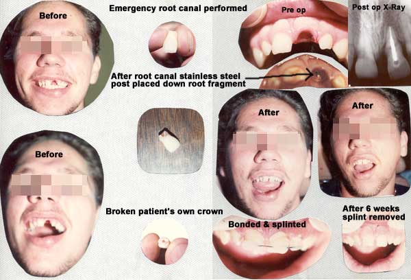 Before and After Emergency Root Canal Treatment