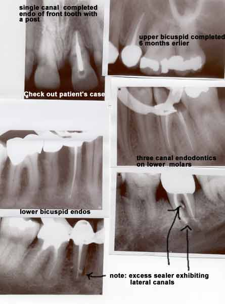 X-rays of root canal treatments