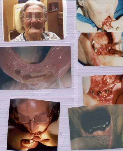 Elederly woman having 4 implants inserted into bottom row