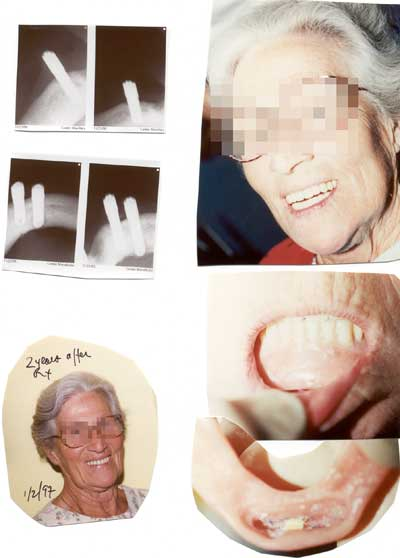 Before & after 2 years later of dental implants