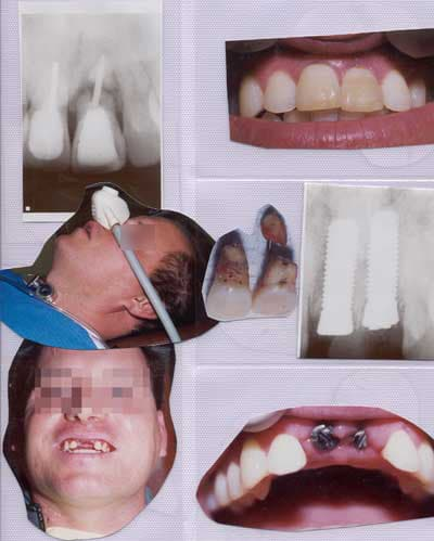 Foundation for implants set in gums for 2 front teeth