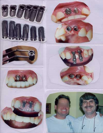 pictures of copleted implants for 2 front teeth