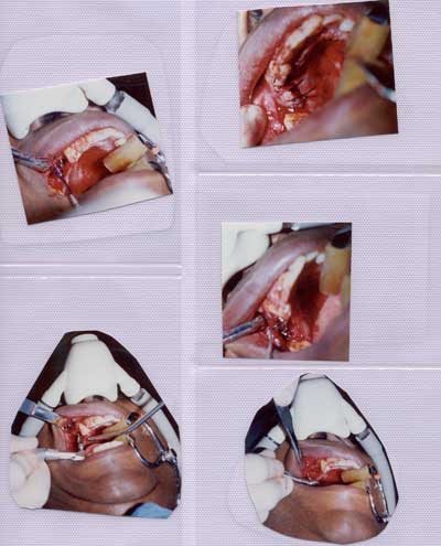 Preparation of gums for installation of dental implants