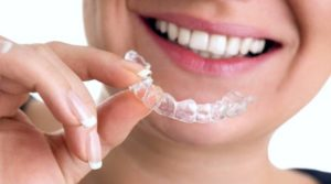 Invisalign clear aligners are practically invisible and can be removed similarly to retainers. Available at Oxnard dentist Carson & Carson, DDS.