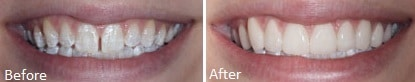 Lumineers before and after. Affordable lumineers at Carson & Carson, DDS in Oxnard, California.