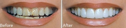 Lumineers before and after at Carson & Carson, DDS in Oxnard, California.