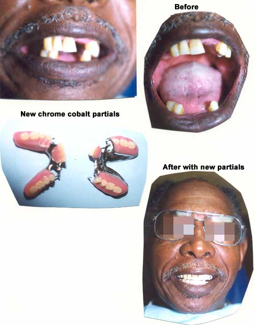 Smile restored with partial dentures