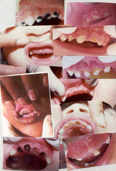 Severe pediatric tooth decay