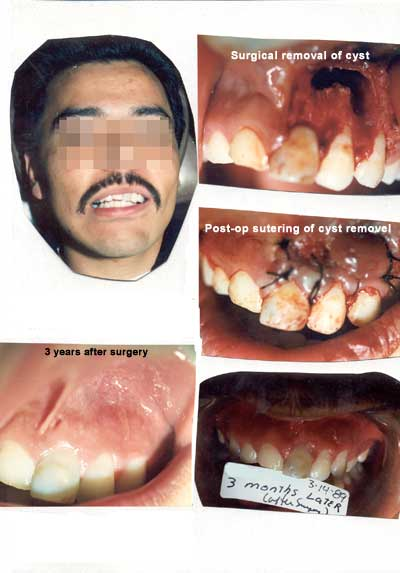 Oral surgery. Surgical removal of cyst