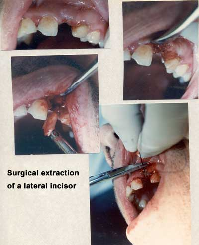 Surgical extraction of a lateral incisor