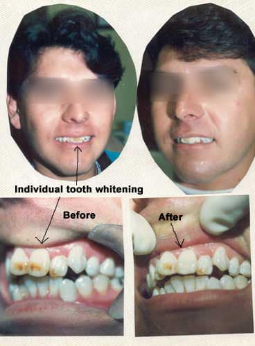 Individual tooth whitening results