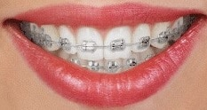 Traditional metal braces available at Carson & Carson, DDS in Oxnard, California.