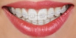 Ceramic braces available from Carson & Carson, DDS in Oxnard, California.