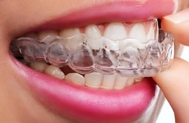 Invisalign clear aligners are an easy to use alternative to braces. Available at Oxnard dentist Carson & Carson, DDS.