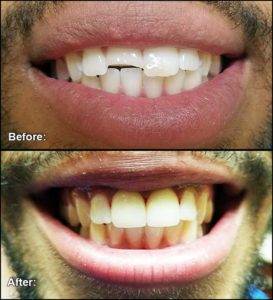 Dental Veneers for Central Incisors.